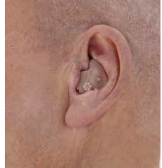 ITE In-the-ear